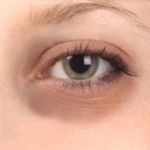 Dark Circles Around the Eyes Despite Yoga and SVA Diet